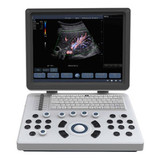 Ultraslim Laptop Color Doppler Ultrasound BENE-3S